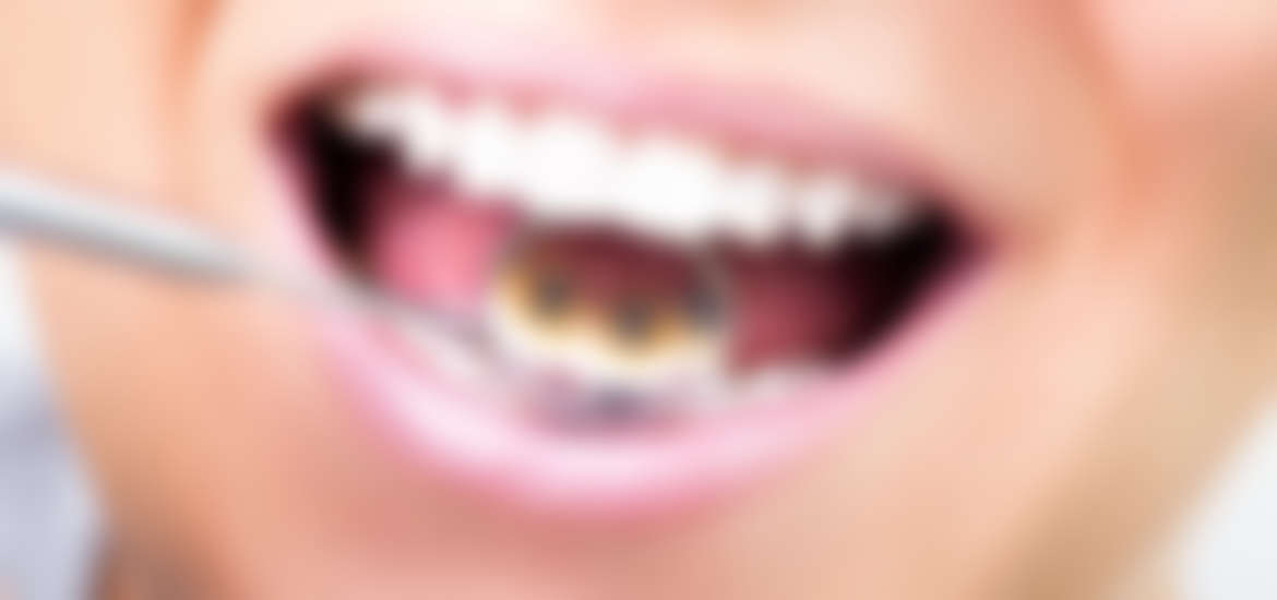 First signs of Gum Disease % | Peace Medical
